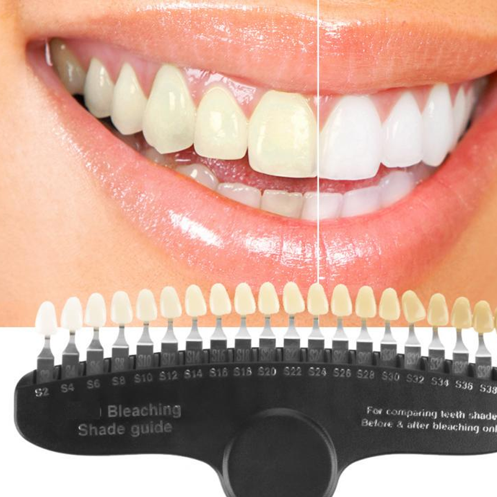 Blog Post on Dental Bleaching